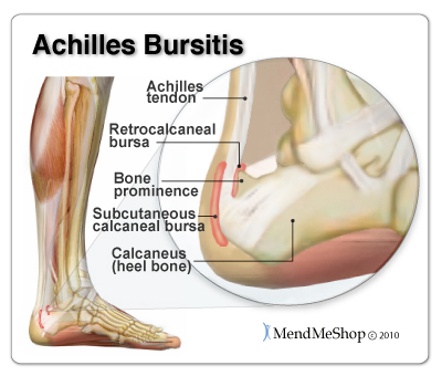 Achilles Bursitis pain and inflammation can be treated naturally