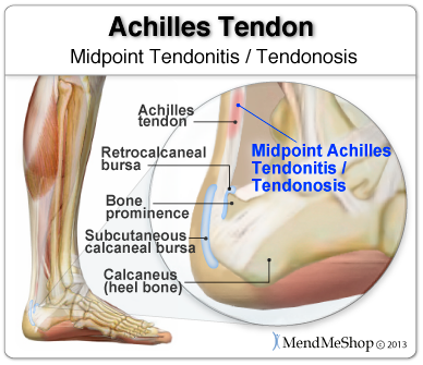Do you have midpoint achilles tendoitis, what you can do to heal
