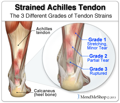 Runners are common sufferers of strained Achilles tendons.