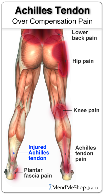 Over compensation pain can result in a severe setback Achilles tendonitis