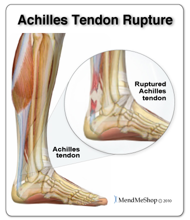 Re-injury to your Achilles tendon can create a massive amount of scar tissue that will degenerate (break down) your Achilles tendon and possibly lead to a full rupture of the tendon.