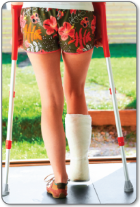 Recovery after Achilles tendon surgery will require a cast, removable brace and/or crutches.