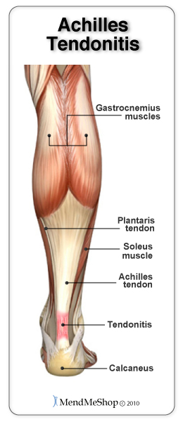Chronic Achilles tendinitis should never go untreated. It can lead to tendinosis, tenosynovitis or a complete Achilles tendon rupture.