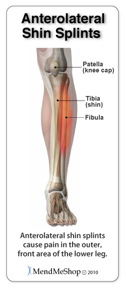 Anterolateral Shin Splint pain occurs in the outer from
