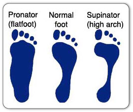 Plantar fasciitis can be caused by improper foot mechanics such as pronation (flat feet) and supination (high arches).