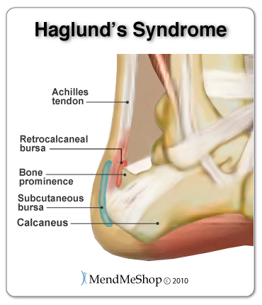haglunds syndrome anatomical view