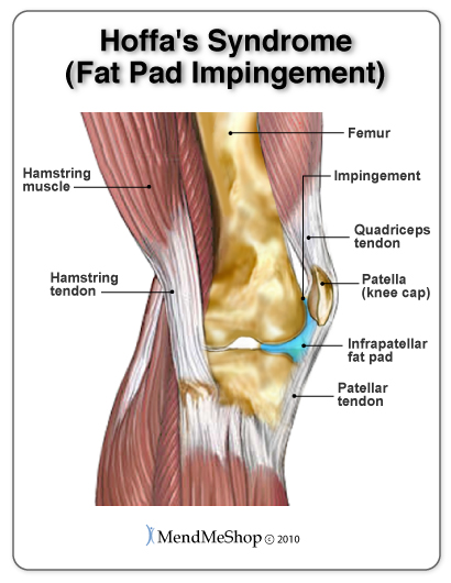 Hoffa's Syndrome (fat pad impingement) causes pain in the front of the knee with swelling and inflammation under the knee cap (patella) and along the patellar tendon.