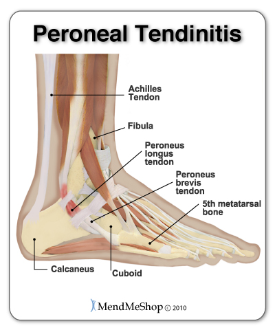 Peroneal tendonitis (tendinitis) is inflammation of the peroneal tendons located on the outside of the ankle.