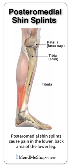 Posteromedial Shin Splint or Medial Tibial Stress Syndrome (MTSS) pain areas