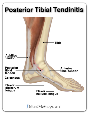 Tiny tears and inflammation in the posterior tibial tendon leads to tendinitis and pain in the arch of the foot.